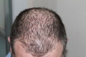 root_hair_loss